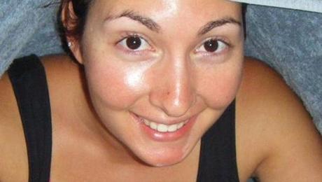 Фото и отзывы о От чего бывает повышенная жирность кожи