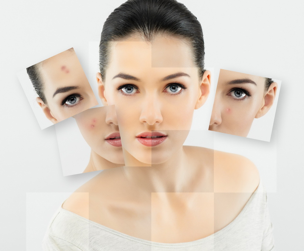 Фото - Проблемная кожа или какие привычки портят кожу