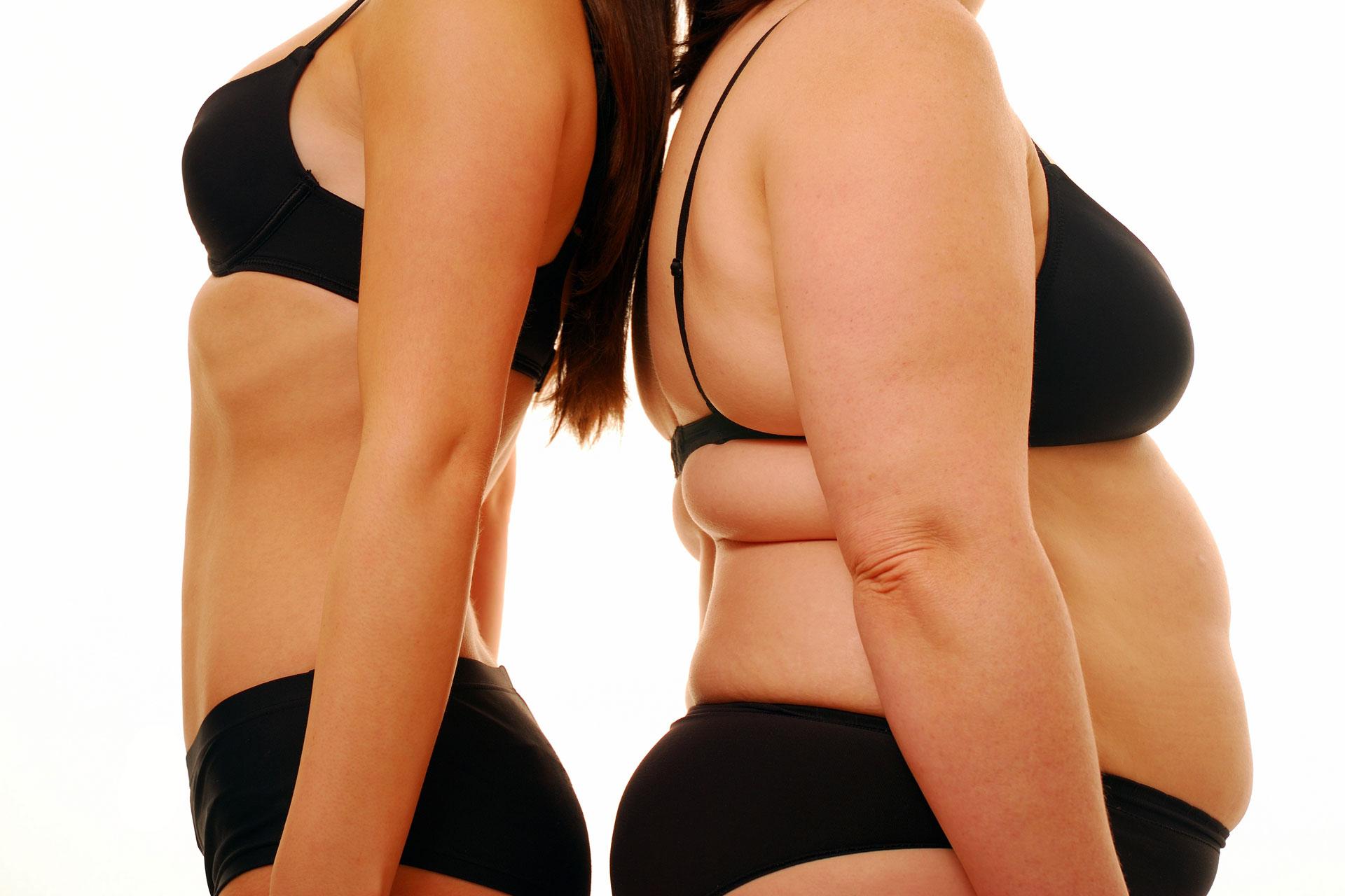 Фото - В чем вред похудения?