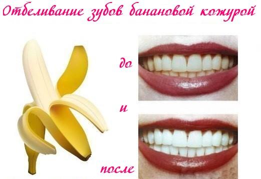 18 способов применения кожуры бананов
