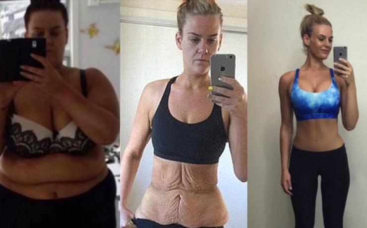 Последствия резкого похудения фото