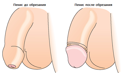 Флемоксин Солютаб - инструкция по применению, аналоги