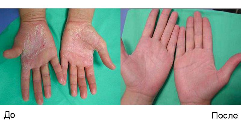 Основные факторы влияющие на развитие псориаза