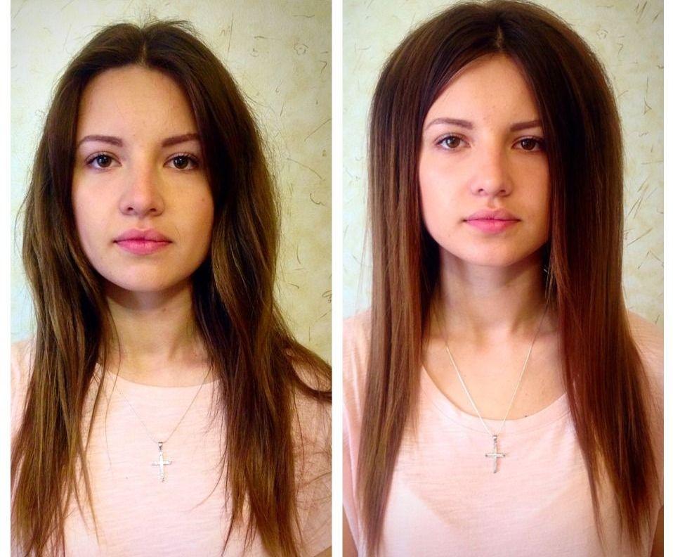 флисинг до и после фото