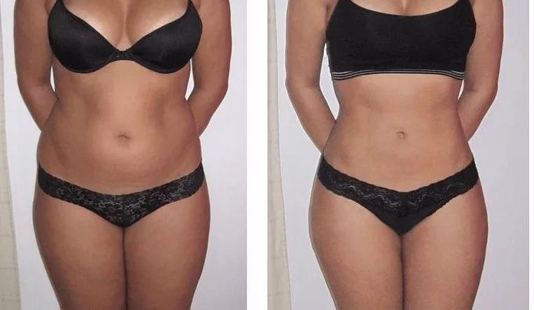 Фото на тему: Липолитики для похудения живота. До и после