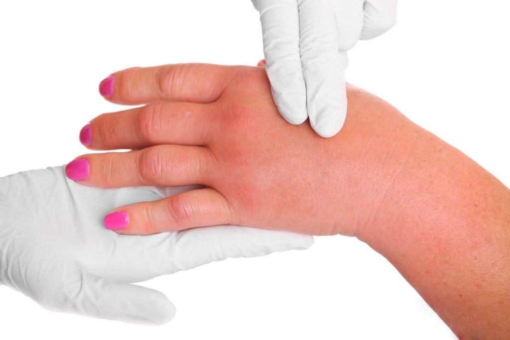 Отекли пальцы рук и болят суставы хруст в суставах рук