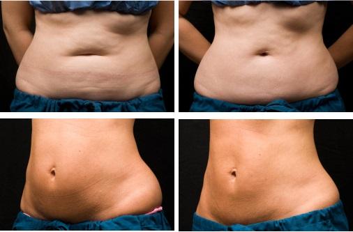 Процедура криолиполиз — фото до и после, противопоказания, как делать