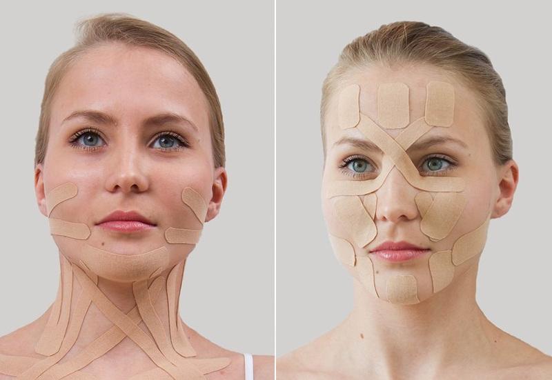 Фото на тему: Эстетическое тейпирование лица в косметологии. Отзывы