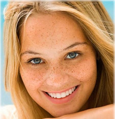 Фото - Как убрать веснушки с лица?