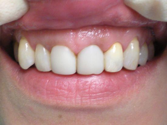 Отбеливание депульпированного зуба