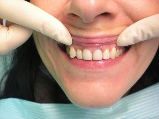 отбеливание мертвых зубов