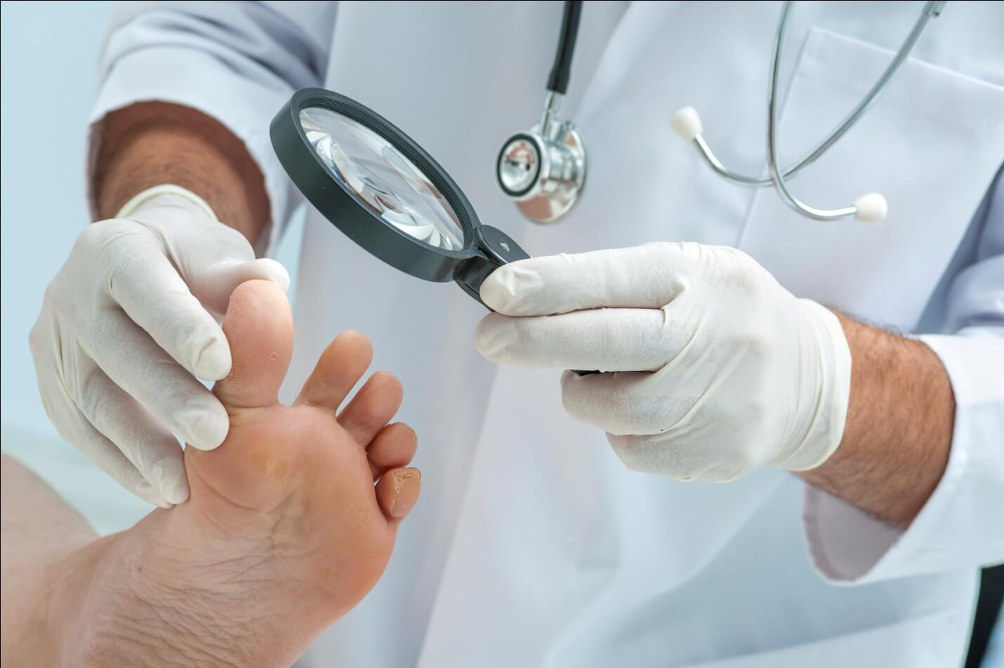 Избавиться от грибка стопы и ногтей эффективные