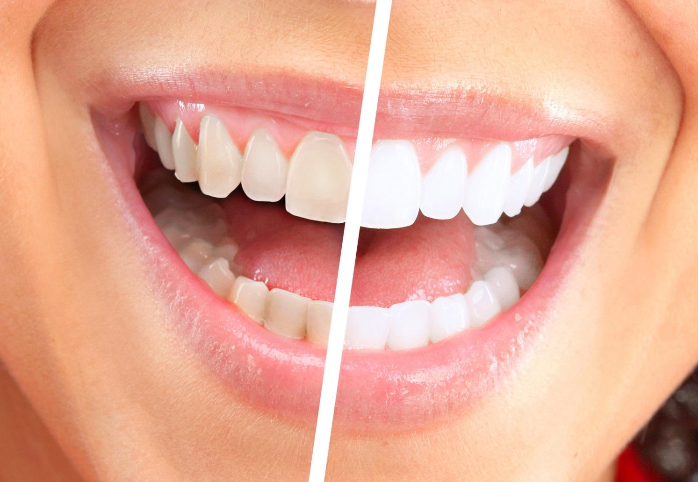 Фото на тему: Самые лучшие способы отбеливания зубов в домашних условиях