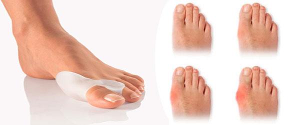 Накладки на пальцы ног от косточек – какие купить или ...