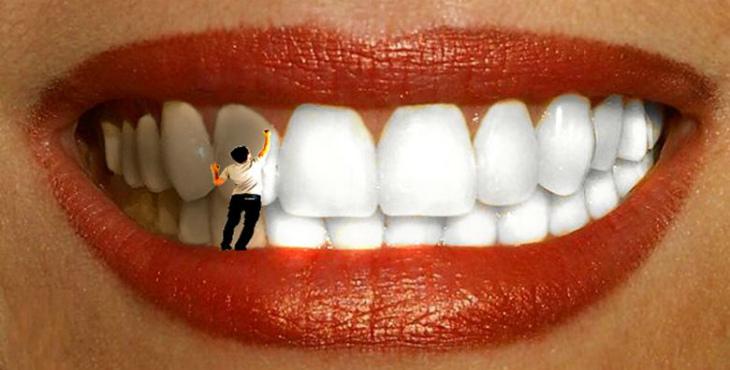 отбеливание зубов отзывы форум