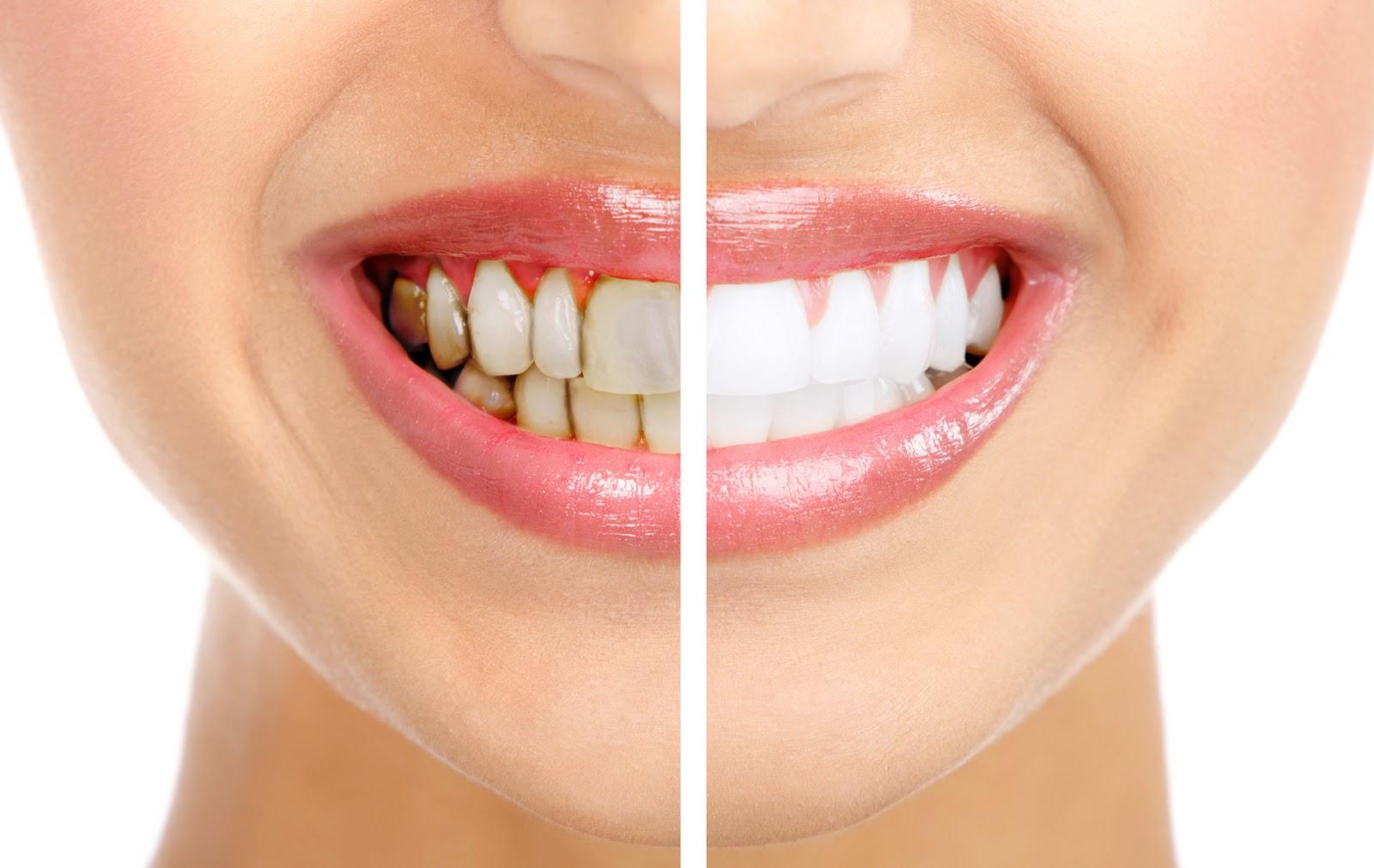 Как избавится от черного налета а зубах в домашних условиях