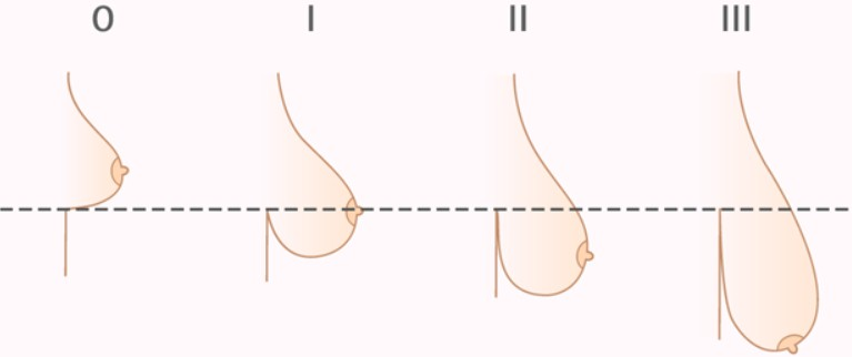 как приподнять висячий грудь и фото