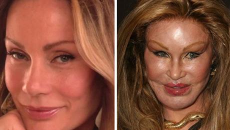 Фото и отзывы о Неудачные пластические операции. Фото до и после
