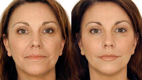 Фото и отзывы о Уколы гиалуроновой кислотой: фото до и после процедуры