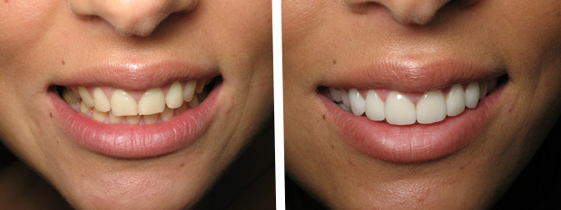 виниры стачивают зубы