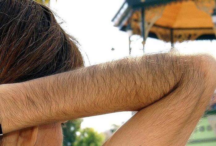 Как убрать волосы на руках? - форум и отзывы 2017 года + фото