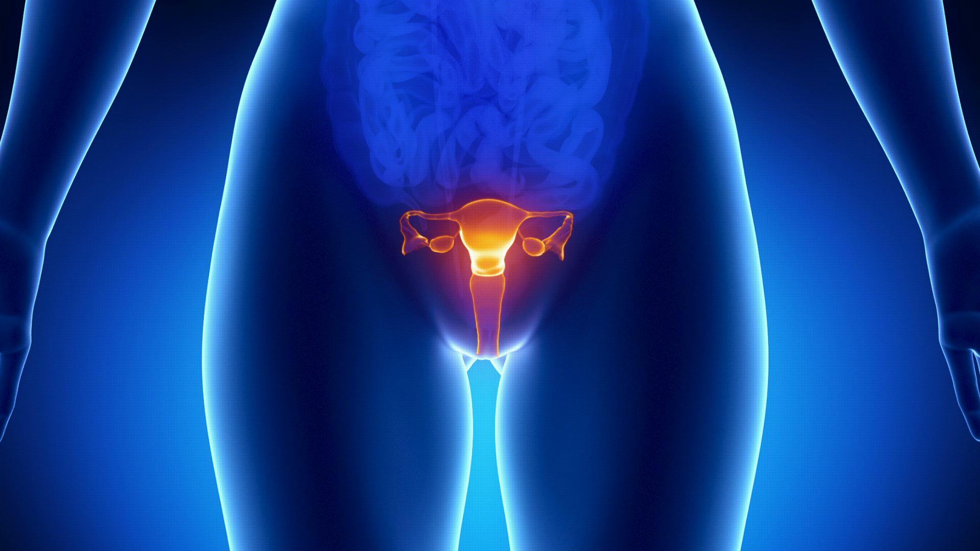 Лапароскопия яичников (удаление кисты, маточной трубы либо ...