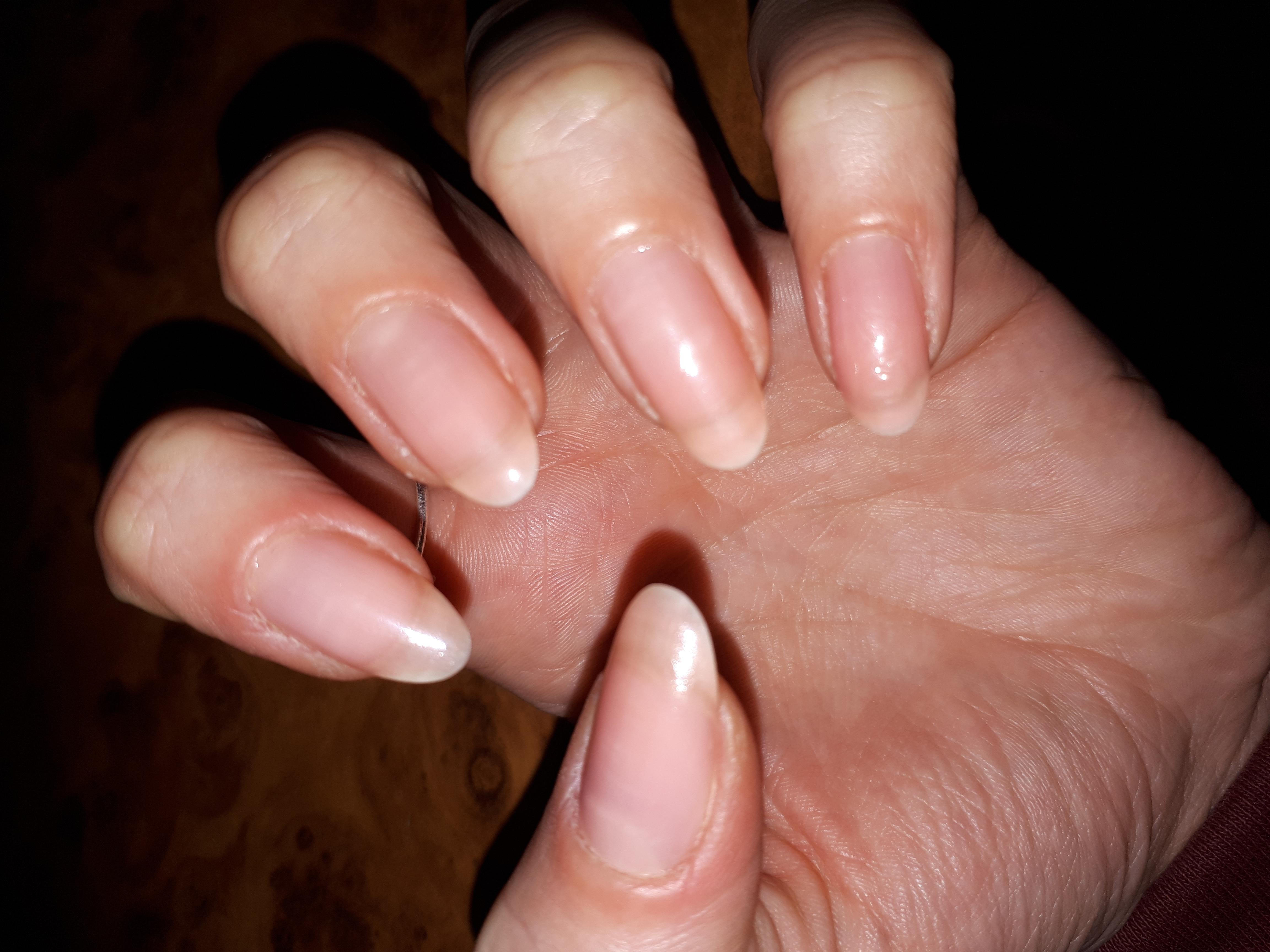 Как укрепить ногти в домашних условиях: рецепты масок, ванночек, кремов 45