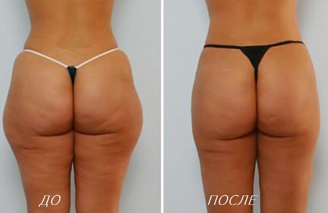 Криолиполиз отзывы фото до и после лазерное омоложение по принципу «плюс ткань»