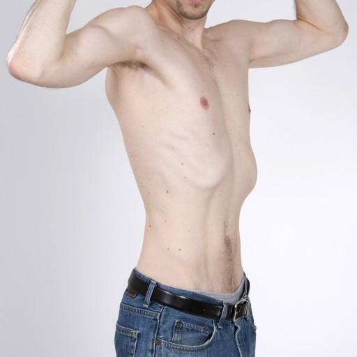 как набрать вес худому в домашних условиях